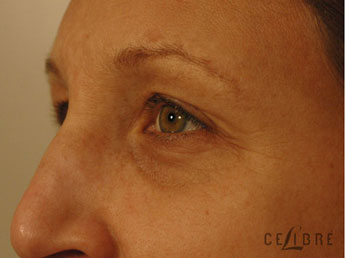 Restylane Injections Before Pictures 17