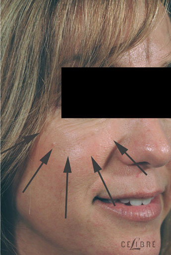 Restylane Injections After Pictures 18