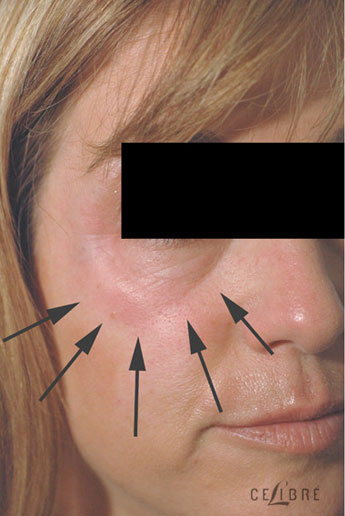 Restylane Injections Before Pictures 18