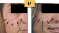 Restylane Injections Before and After Pictures Sm 18