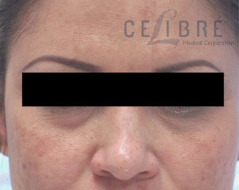 Restylane Injections Before Pictures 1