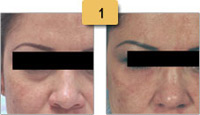Restylane Injections Before and After Pictures Sm 1