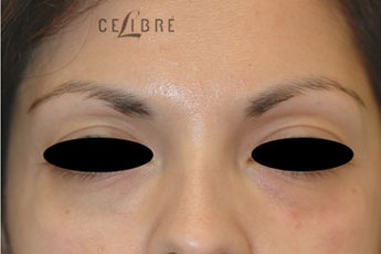 Restylane Injections After Pictures 20