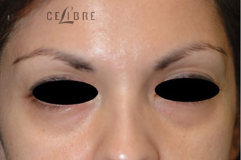 Restylane Injections Before Pictures 20