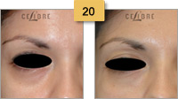 Restylane Injections Before and After Pictures Sm 20
