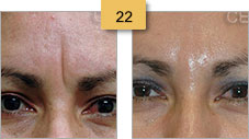 Restylane Injections Before and After Pictures Sm 22