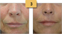 Restylane Injections Before and After Pictures Sm 3