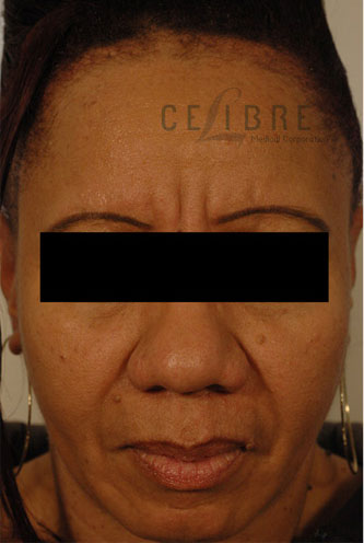 Restylane Injections Before Pictures 4