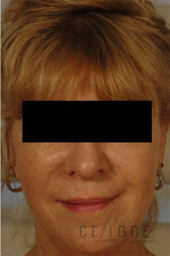 Restylane Injections After Pictures 6