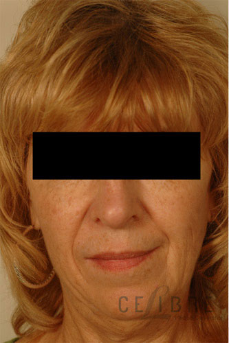 Restylane Injections Before Pictures 6