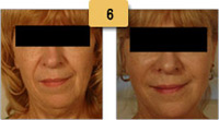 Restylane Injections Before and After Pictures Sm 6