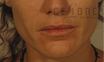 Restylane Injections Before Pictures 7