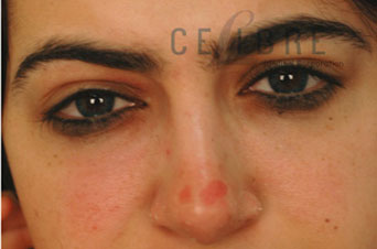 Restylane Injections After Pictures 8