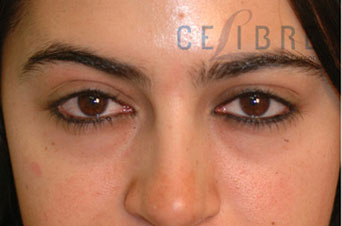 Restylane Injections Before Pictures 8