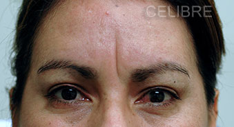 Restylane Injections Before Pictures 22