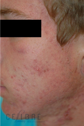 Rosacea Treatment After Pictures 1