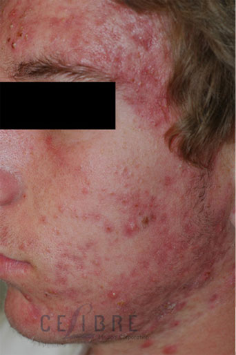 Rosacea Treatment Before Pictures 1