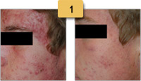 Rosacea treatment Before and After Pictures Sm 1