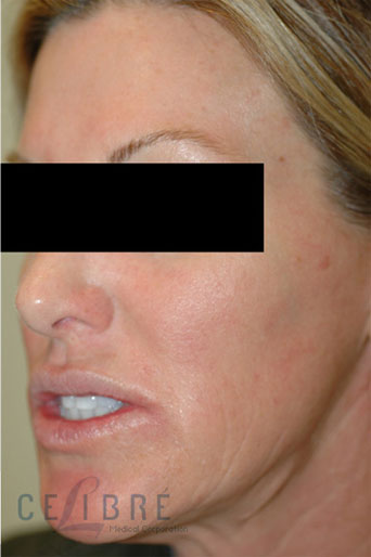 Rosacea Treatment After Pictures 2