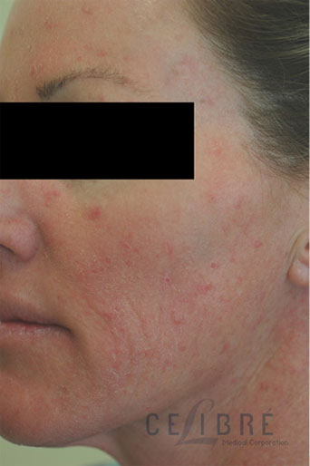Rosacea Treatment Before Pictures 2
