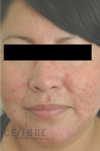Rosacea Treatment After Pictures 3