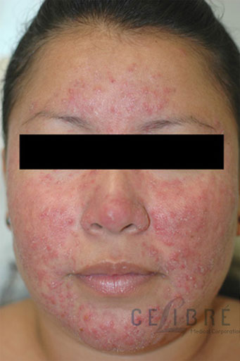 Rosacea Treatment Before Pictures 3