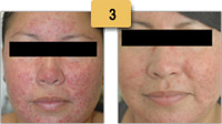 Rosacea treatment Before and After Pictures Sm 3