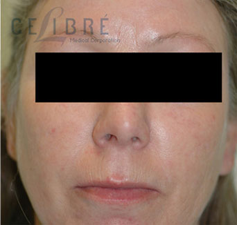 Rosacea Treatment After Pictures 4