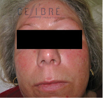 Rosacea Treatment Before Pictures 4