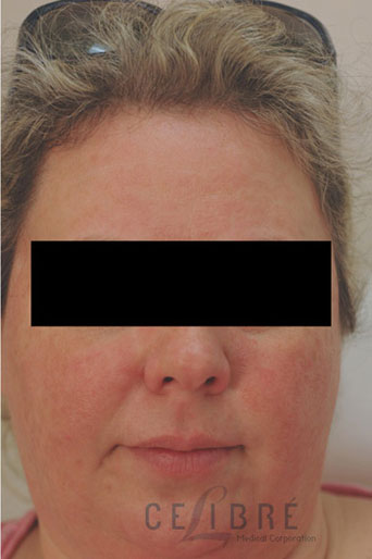 Rosacea Treatment After Pictures 5