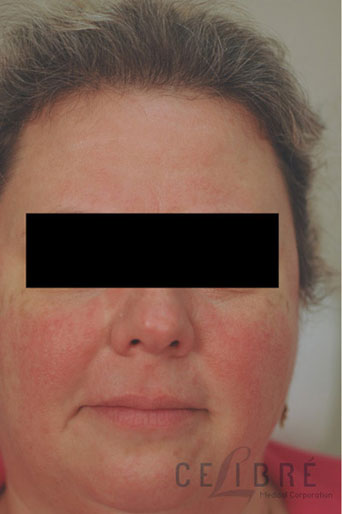 Rosacea Treatment Before Pictures 5