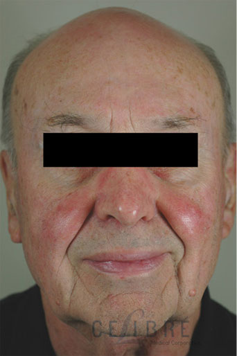 Rosacea Treatment Before Pictures 6