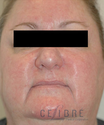 Rosacea Treatment After Pictures 7