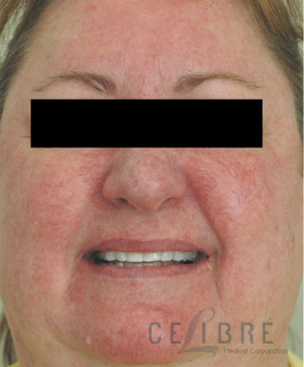 Rosacea Treatment Before Pictures 7