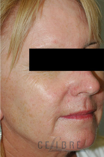 Rosacea Treatment After Pictures 8