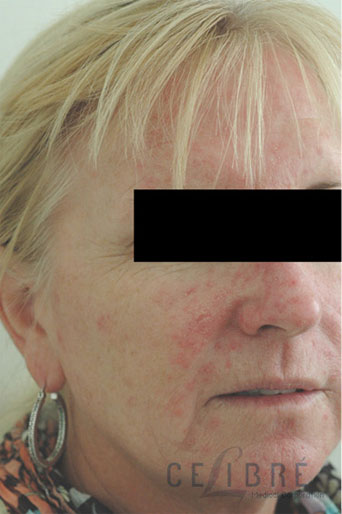 Rosacea Treatment Before Pictures 8