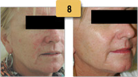 Rosacea treatment Before and After Pictures Sm 8