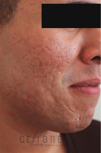 Before And After Scar Removal For Textured Acne Scars 8