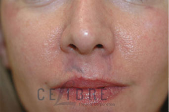 Scar Removal Before Pictures 10