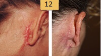 Face lift scar removal Before and After Pictures Sm 11