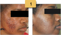 Acne Spot Scar Removal Before and After Pictures Sm 1