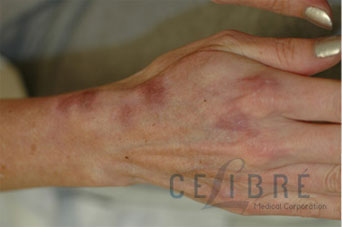 Before And After Scar Removal For Burn Scars 3