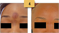 Chemical Peel Scar Removal Before and After Pictures Sm 4