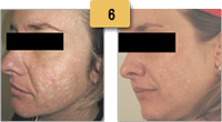 Indented Acne Scar Removal Before and After Pictures Sm 6