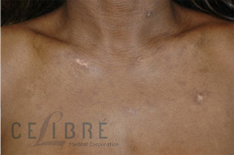 Scar Removal After Pictures 9