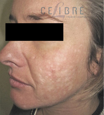 Before And After Scar Removal For Indented Acne Scars 6