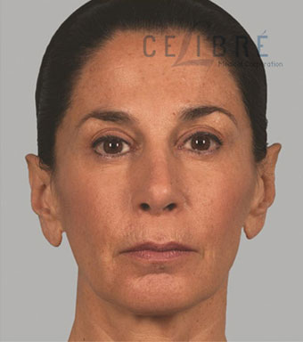Sculptra Injections After Pictures 1