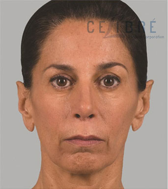Sculptra Injections Before Pictures 1