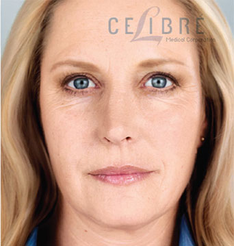 Sculptra Injections After Pictures 2