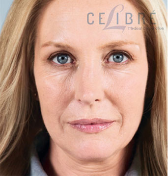 Sculptra Injections Before Pictures 2